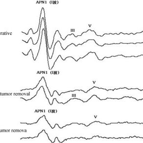 (PDF) Hearing Preservation in Acoustic Neuroma Surgery