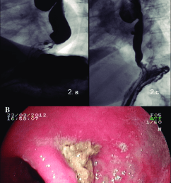 lower third esophageal diverticulum sliding hiatal hernia is observed distally [ 720 x 1162 Pixel ]