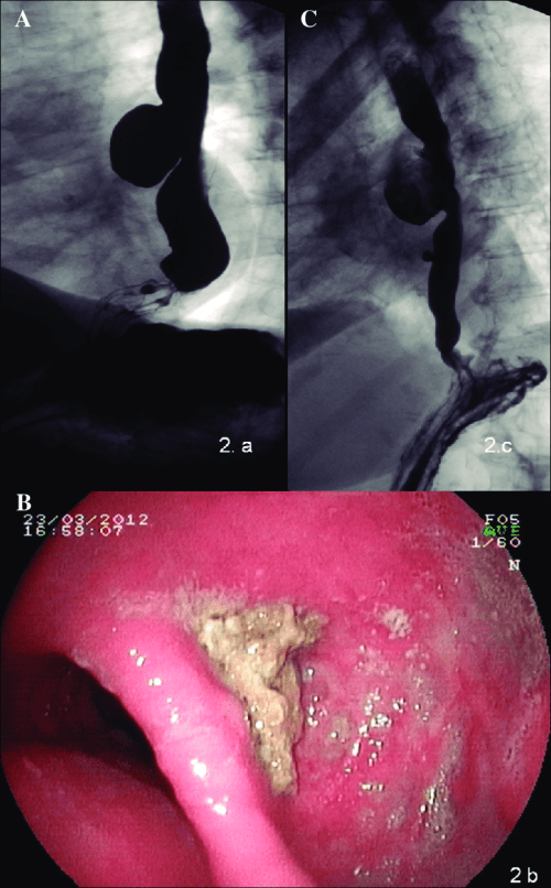small resolution of lower third esophageal diverticulum sliding hiatal hernia is observed distally