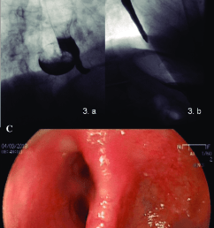lower esophageal diverticulum image located in the right posterior side  [ 720 x 1216 Pixel ]
