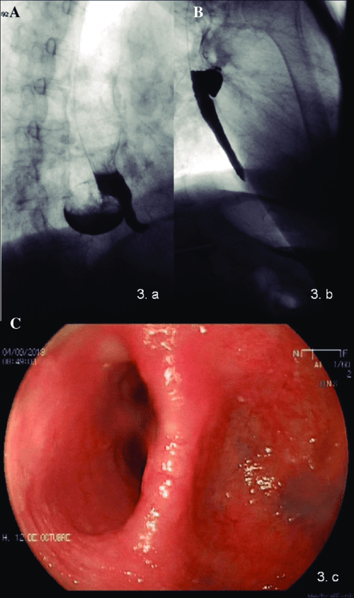 small resolution of lower esophageal diverticulum image located in the right posterior side