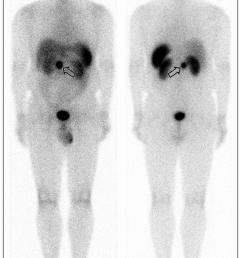 an in 111 pentetreotide scan showed an avid focus at the epigastrium open arrow [ 850 x 1363 Pixel ]