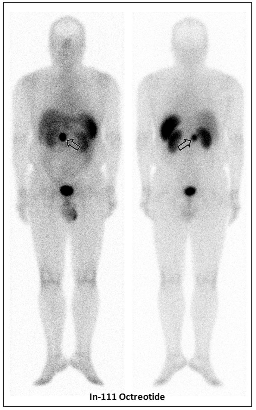 medium resolution of an in 111 pentetreotide scan showed an avid focus at the epigastrium open arrow