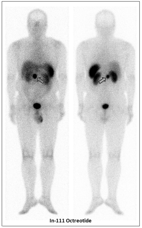 small resolution of an in 111 pentetreotide scan showed an avid focus at the epigastrium open arrow
