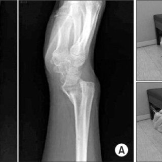 (PDF) Complications of Distal Radius Fracture