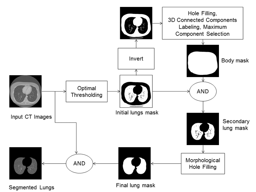 Block diagram of the lung segmentation process. The