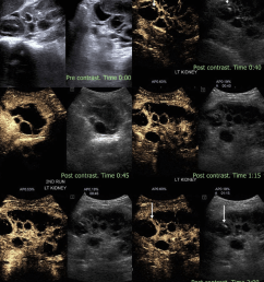 complex renal cyst noncontrast ultrasound shows a large renal cyst with solid echogenic component within [ 850 x 1039 Pixel ]