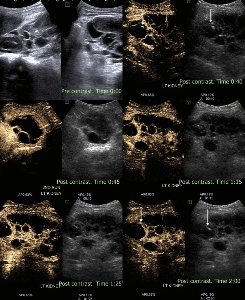 hight resolution of complex renal cyst noncontrast ultrasound shows a large renal cyst with solid echogenic component within
