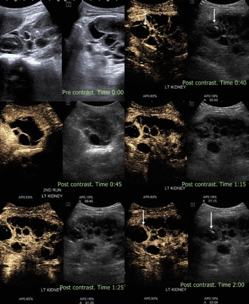 small resolution of complex renal cyst noncontrast ultrasound shows a large renal cyst with solid echogenic component within