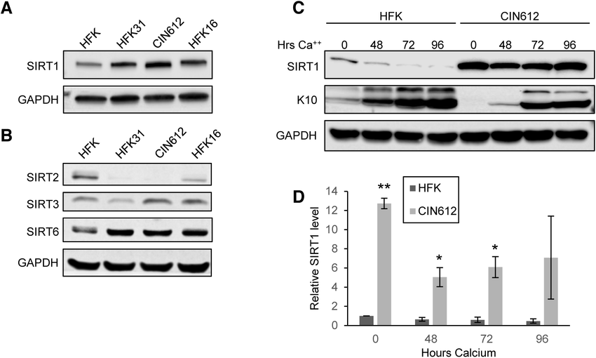 HPV induces overexpression of SIRT1 throughout