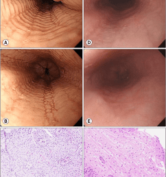 a loss of the submucosal vascular pattern stacked circular rings and linear furrows were noted at the esophagus b circular rings disappeared after  [ 850 x 1197 Pixel ]
