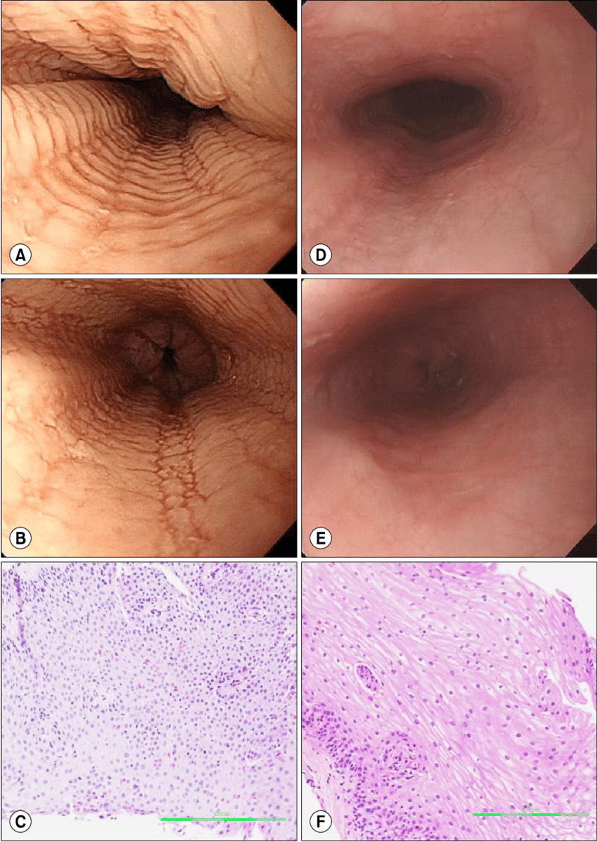 hight resolution of  a loss of the submucosal vascular pattern stacked circular rings and linear furrows were noted at the esophagus b circular rings disappeared after