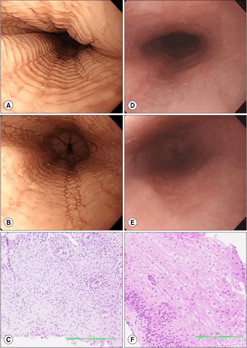 small resolution of  a loss of the submucosal vascular pattern stacked circular rings and linear furrows were noted at the esophagus b circular rings disappeared after