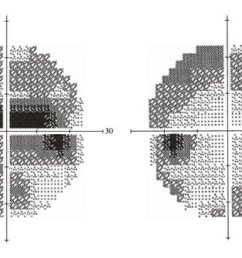 nonmydriatic fundus photography visual fields and optical coherence tomography of a 68 year [ 850 x 945 Pixel ]