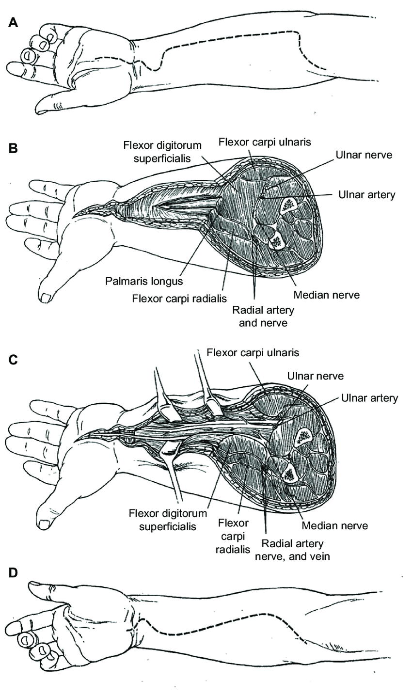 Surgical approaches to the volar compartment of the