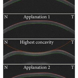 (PDF) Assessment of Corneal Biomechanical Properties by