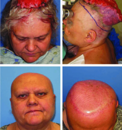 sixty two year old woman with squamous cell carcinoma of scalp neglected [ 850 x 1132 Pixel ]