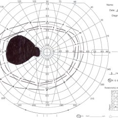 Diagram Of The Left Eye Emg 81 Wiring Manual Perimetry In Os Abbreviation Download