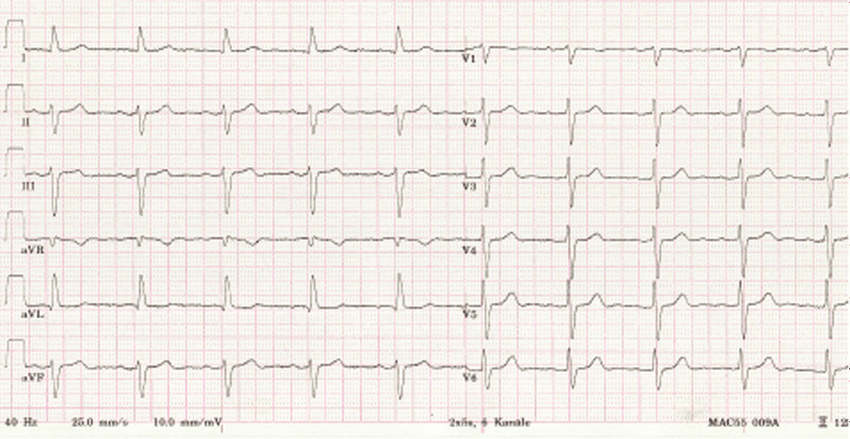 -Left bundle branch block pattern after two doses of