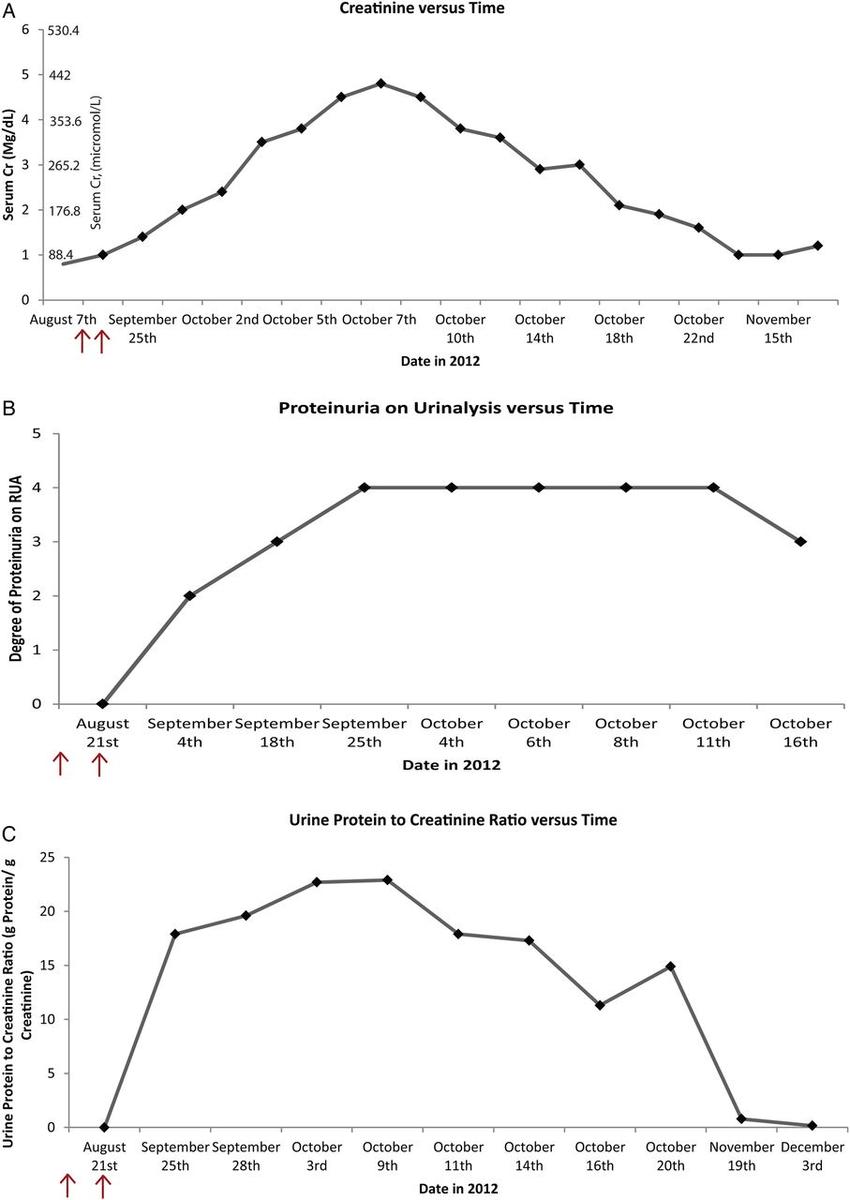hight resolution of trends of serum creatinine urinalysis proteinuria albuminuria and urine protein to creatinine