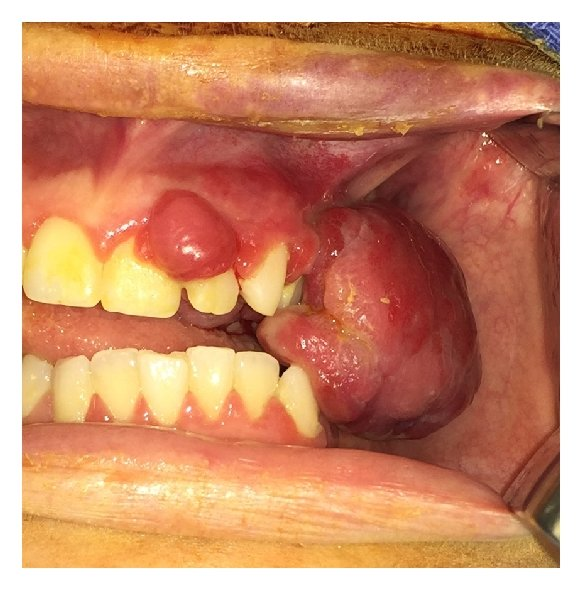 diagram of mouth with teeth numbers led light wiring relay recurrent lesion two months after initial excision 24 and 25 international nomenclature