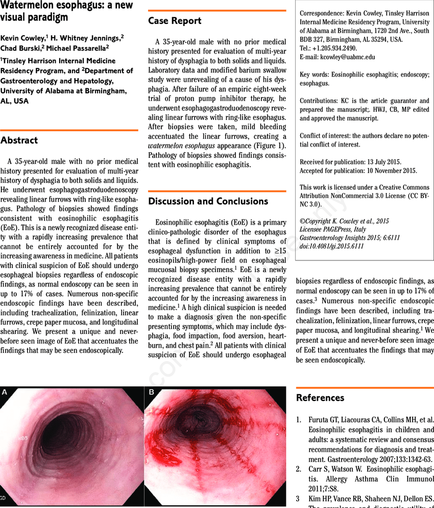 hight resolution of a trachealization of the esophagus with subtle linear furrows prior to biopsies b