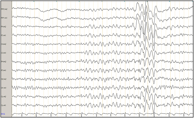Example of a clinical electroencephalogram (EEG) of a