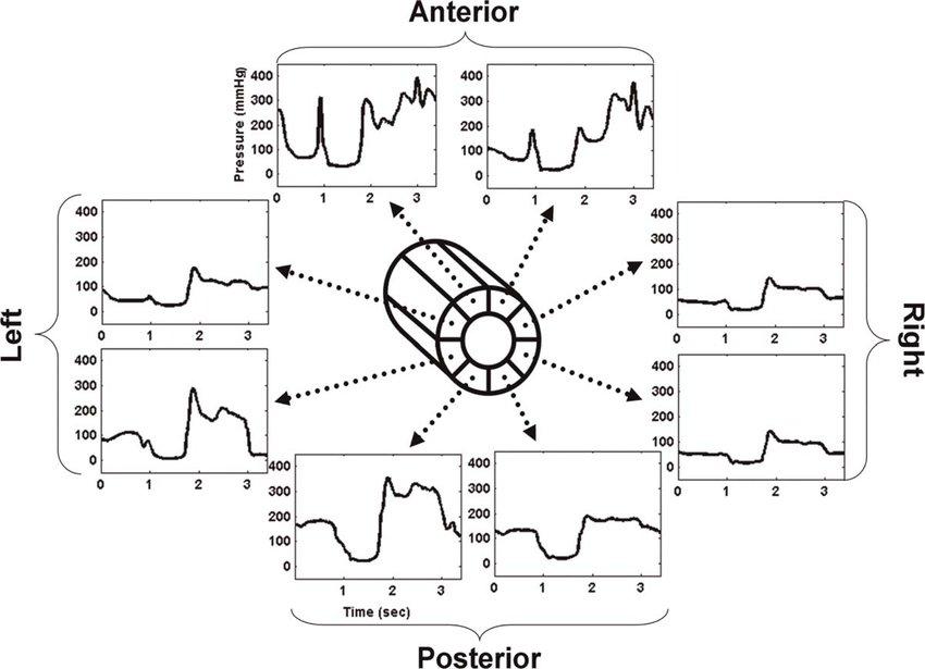 Diagram of a single pressure sensor from a three