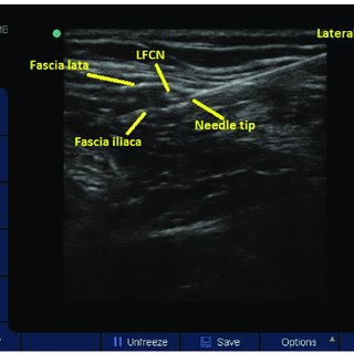 (PDF) Effect of lateral femoral cutaneous nerveblock on ...
