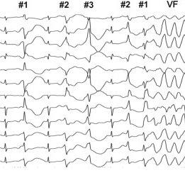 Twelve-lead ECG recording during epinephrine stress test