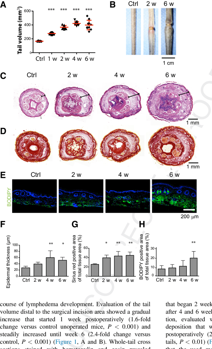 medium resolution of fibroadipose tissue accumulation in lymphedema a increase of tail volume over the course of