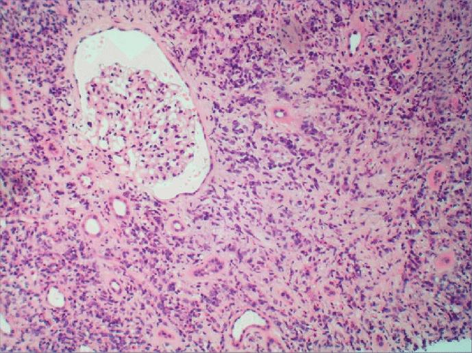 IgG4 tubulointerstitial nephritis: Kidney parenchyma exhibiting a dense...   Download Scientific Diagram