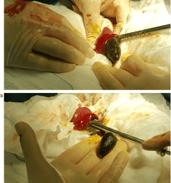 a b removal of the gallstone through the ruptured site  [ 850 x 954 Pixel ]