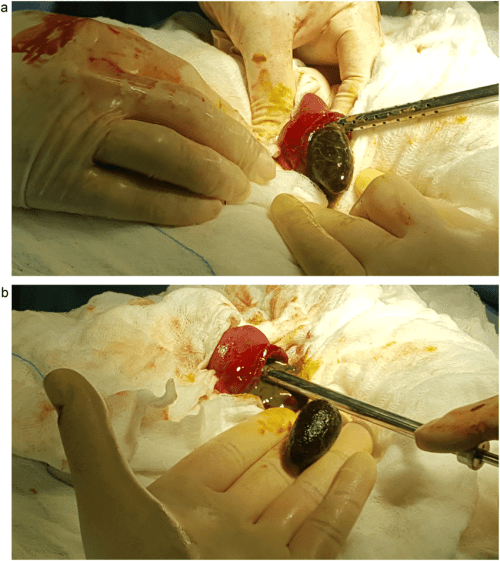 small resolution of  a b removal of the gallstone through the ruptured site