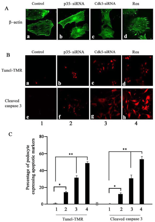 small resolution of p35 sirna directly induced podocyte apoptosis and abnormal morphology as detected by tunel analysis and immunofluorescence