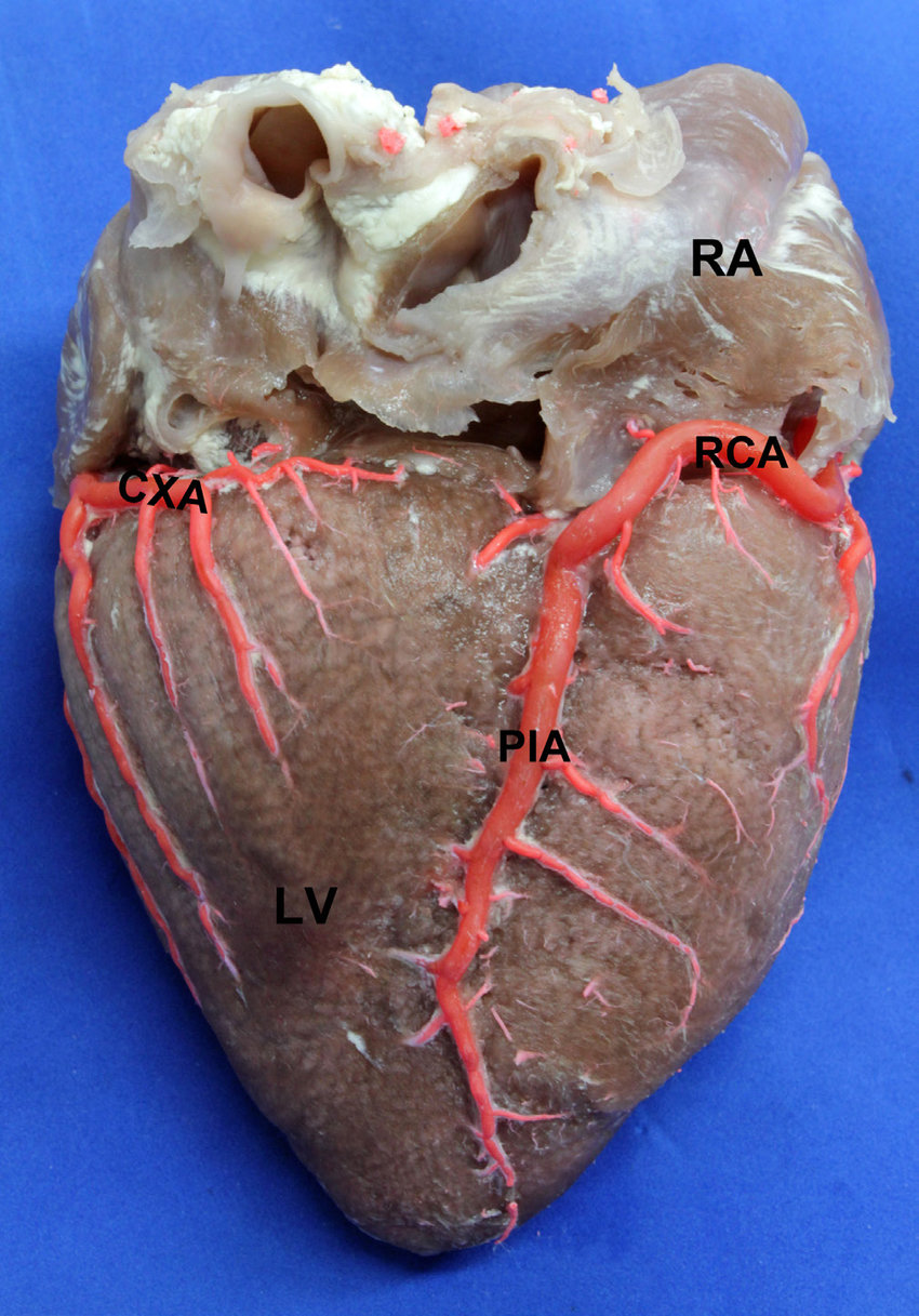 medium resolution of posterior view of the heart lv left ventricle ra right atrium