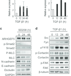 a expression of arhgef5 and phospho mlc in tgf 1 treated mcf10a cells was analyzed by western blotting values represent the mean s d  [ 654 x 1287 Pixel ]