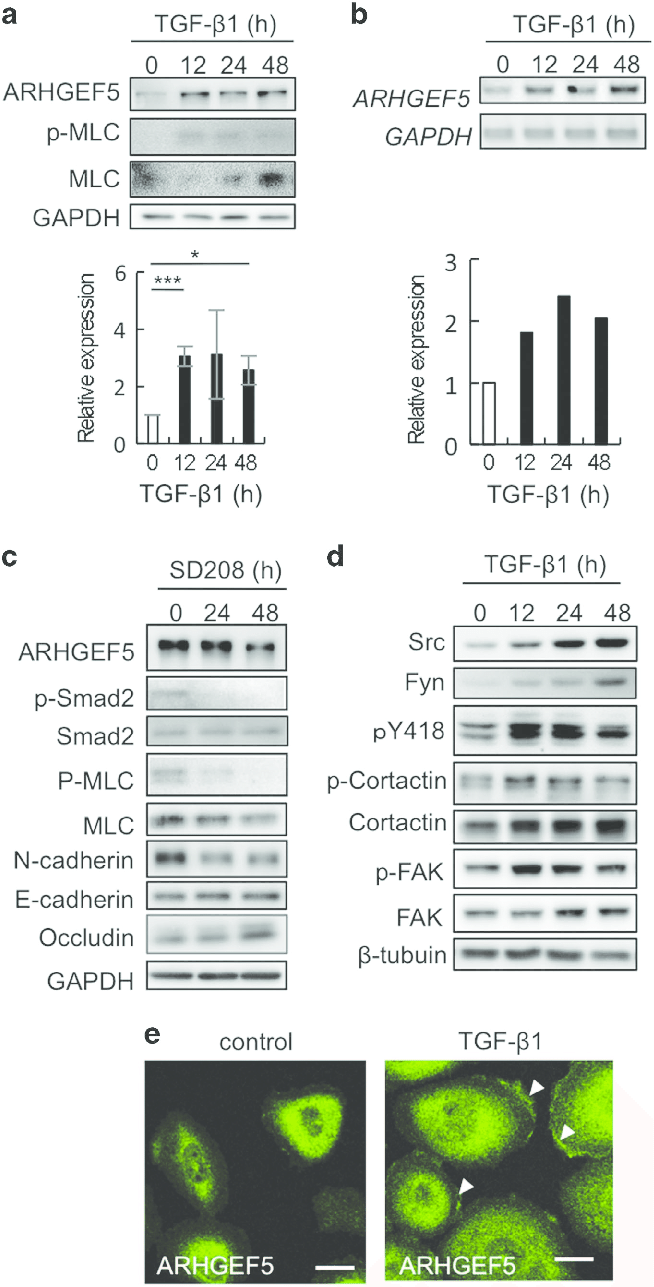 medium resolution of  a expression of arhgef5 and phospho mlc in tgf 1 treated mcf10a cells was analyzed by western blotting values represent the mean s d