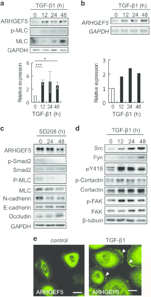 small resolution of  a expression of arhgef5 and phospho mlc in tgf 1 treated mcf10a cells was analyzed by western blotting values represent the mean s d