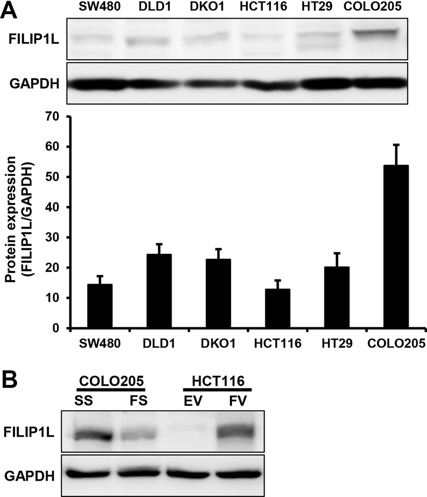 medium resolution of filip1l protein levels in human colorectal cancer cells a download scientific diagram
