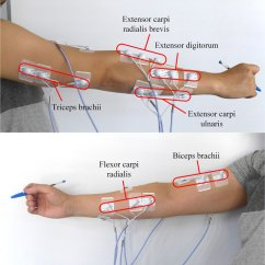 Upper Arm Muscles Diagram 2000 Ford F150 Parts Electrode Placement Over The Forearm And
