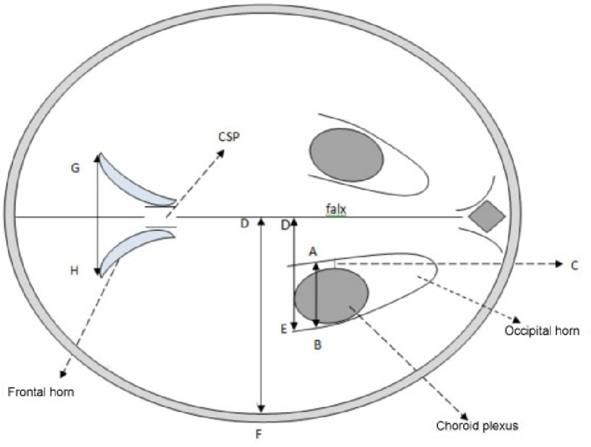 Schematic diagram of the axial transventricular ultrasound