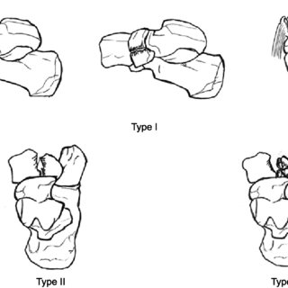 Fracture of the medial cuneiform and Lisfranc joint were