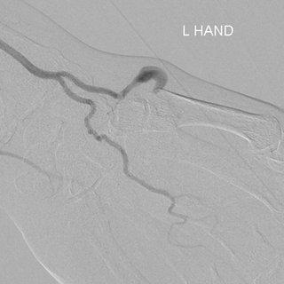 (PDF) Extensor pollicis longus tendon compression as the