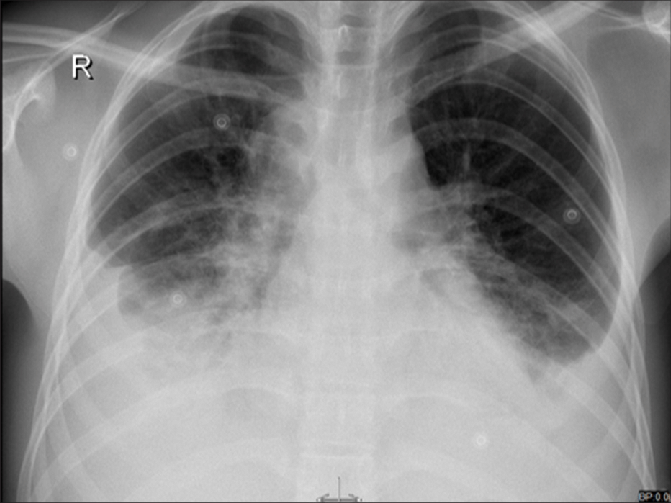 Chest X-ray showing bilateral pleural effusions with ...