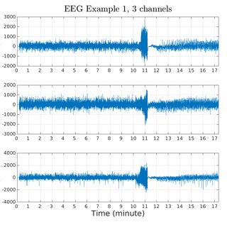Top: noisy EEG signal example with a seizure starting at ...