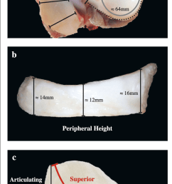 meniscal dimensional measurements in a pig stifle joint representative of all measurements recorded across species  [ 689 x 1224 Pixel ]