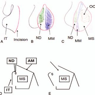 Schema of operative procedure. (A) Incision along the