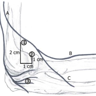 (PDF) Tips to avoid nerve injury in elbow arthroscopy