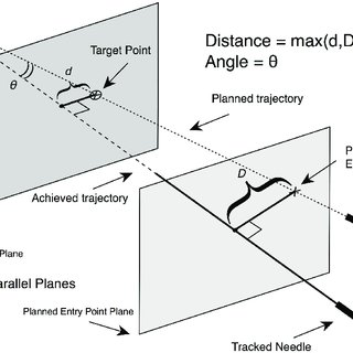 (PDF) Computer assisted electromagnetic navigation